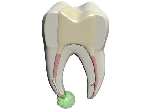 molar_fragment_pa